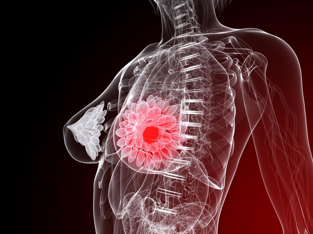 tomosintesi della mammella